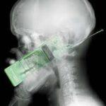 Usar celular pode afetar o funcionamento do cérebro