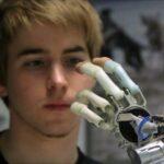 Jovem decide amputar a própria mão para implantar prótese biônica