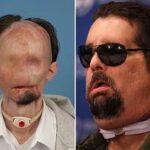Primeiro norte-americano a realizar transplante completo de rosto aparece em público