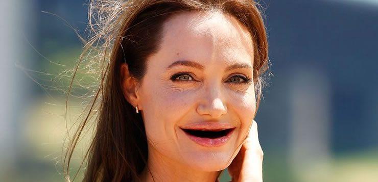 O fetiche por pessoas sem dentes é chamado de anadentisfilia