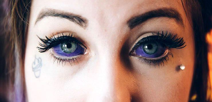 """Nas modificações corporais a tatuagem no globo ocular é conhecida como """"scleral tattooing"""""""
